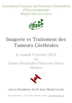 Imagerie et Traitement des Tumeurs Cérébrales