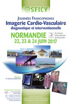 Journées Francophones Imagerie Cardio-Vasculaire diagnostique et interventionnelle