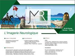 L'Imagerie Neurologique